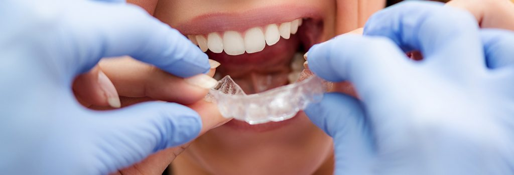 orthodontist-with-invisalign-patient